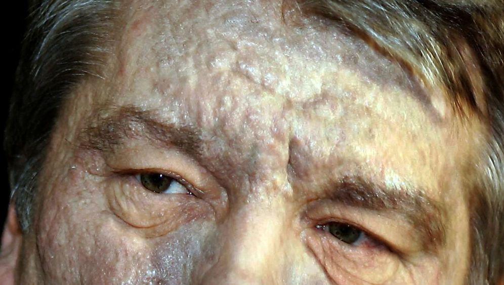 Dioxin-Skandale: Das Überall-Gift