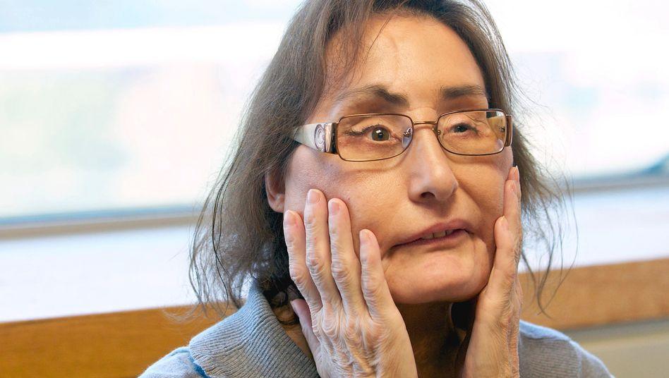 Zwölf Jahre lebte Connie Culp mit ihrem neuen Gesicht (Archivbild)