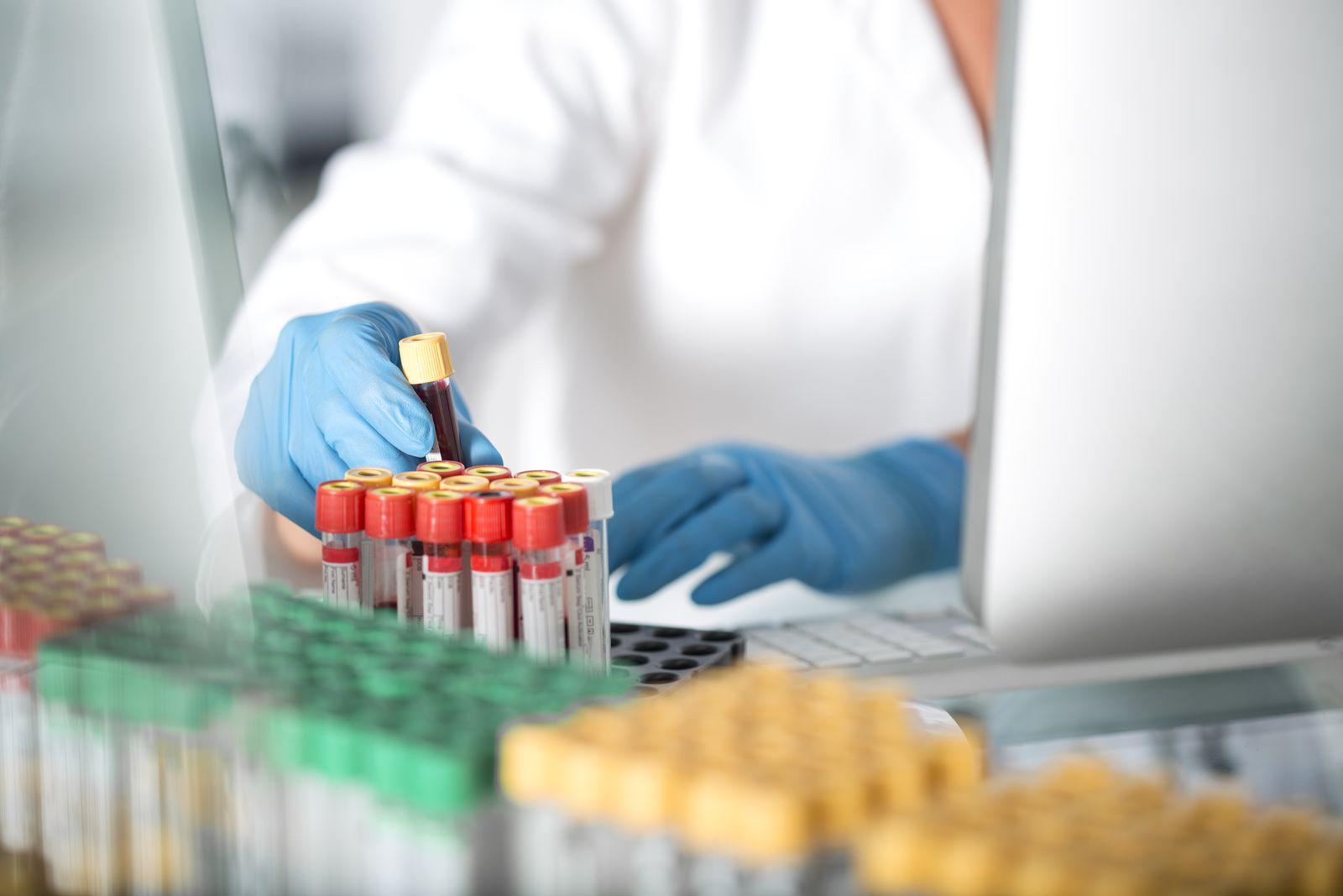 EINMALIGE VERWENDUNG Blutprobe/ Schwangere/ Trisomie 21