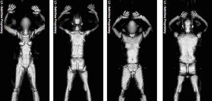 Röntgenbilder eines Ganzkörperscanners: Käufer gesucht