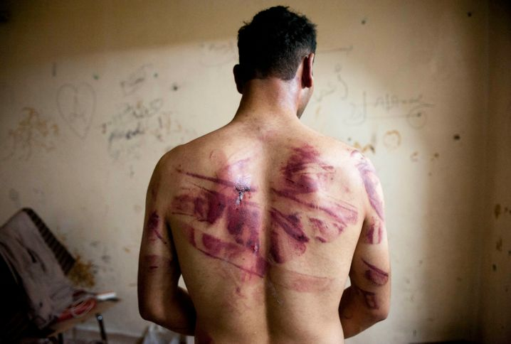 Gefoltert, aber am Leben: Ein Mann aus Syrien zeigt seine Narben