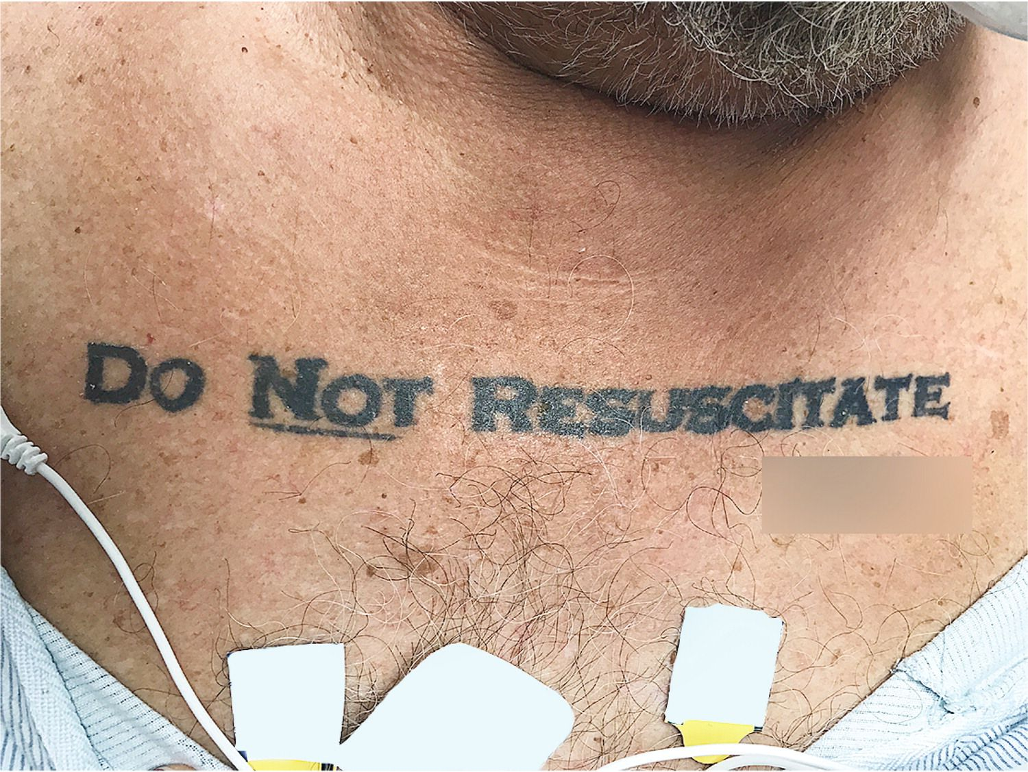 EINMALIGE VERWENDUNG Tattoo/ Do not Resuscitate