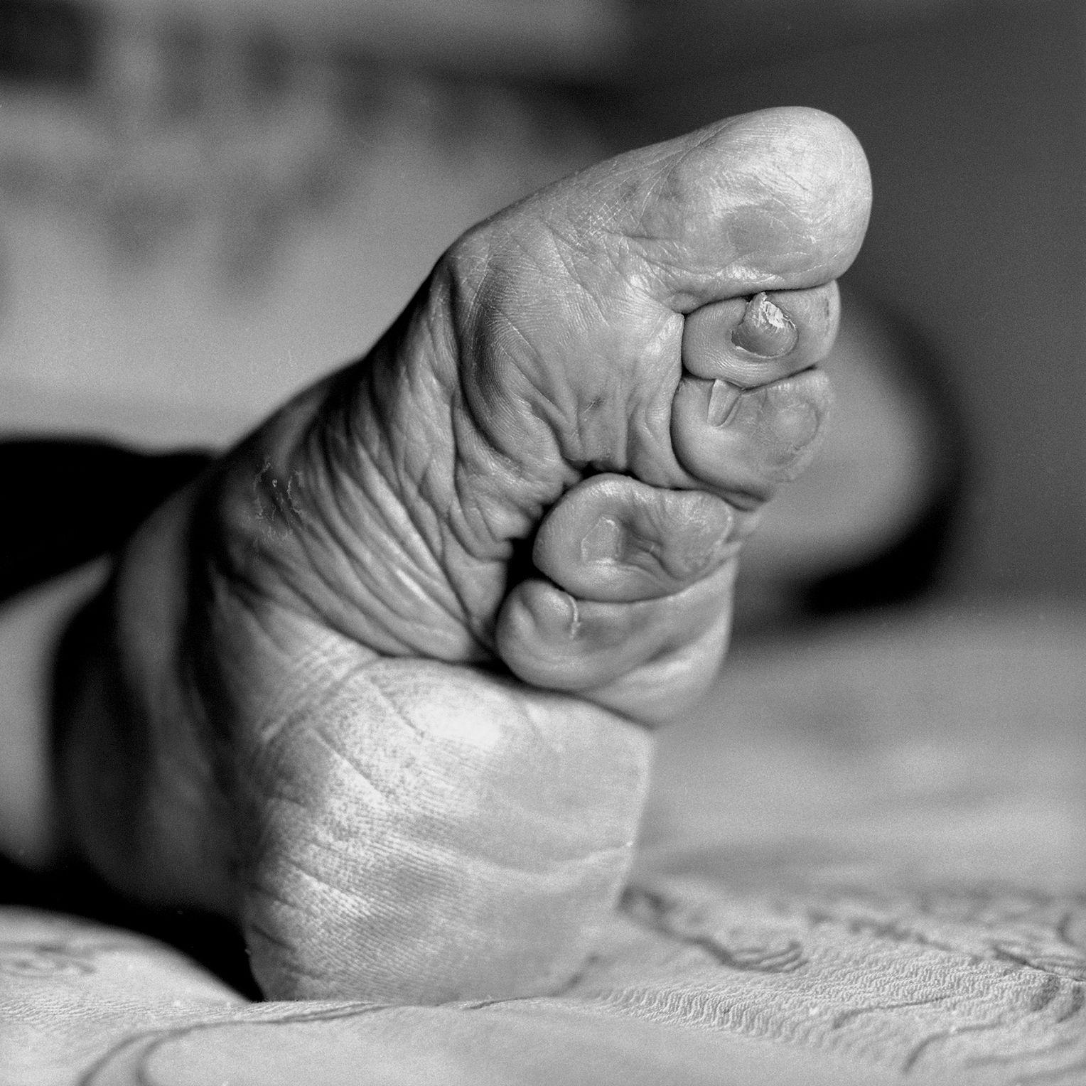Frauen mit gebundenen Füßen in China porträtiert von Jo Farrell