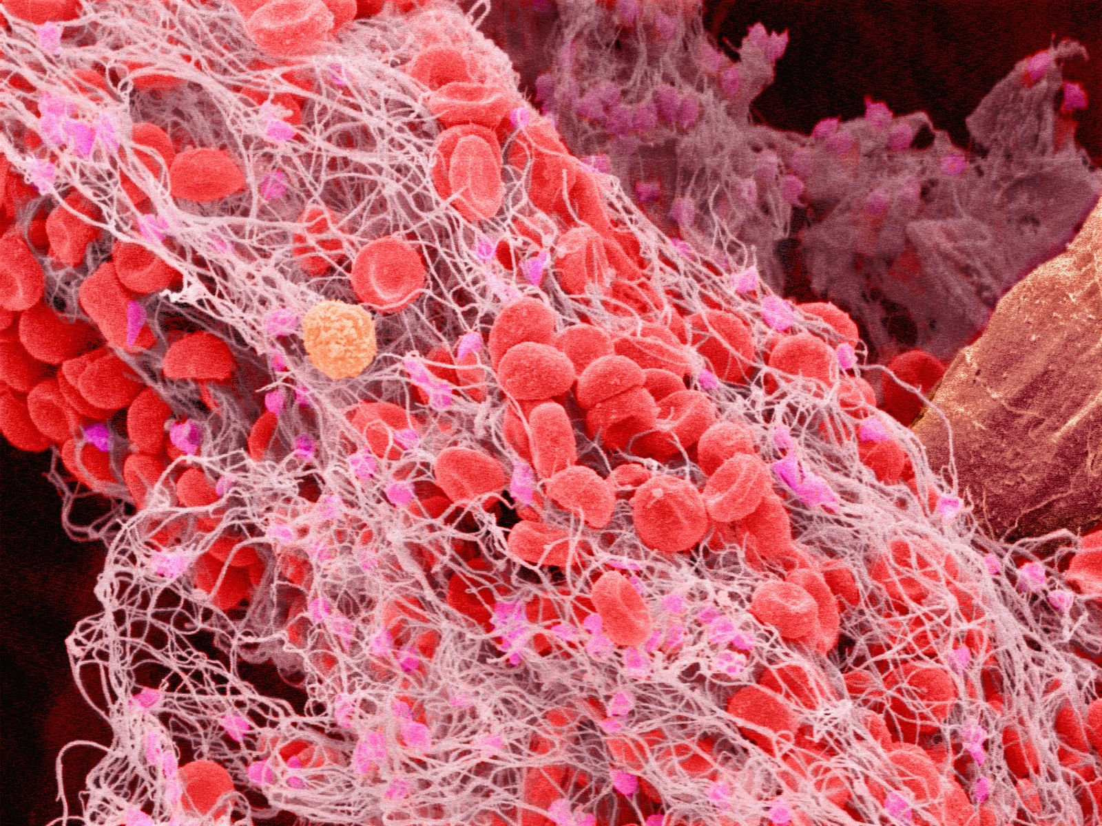 Scanning electron micrograph of a blood clot in human blood