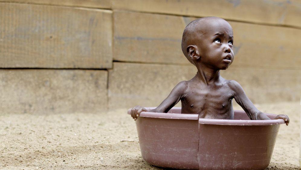 Ostafrika: Ausgemergelte Kinder, verzweifelte Eltern