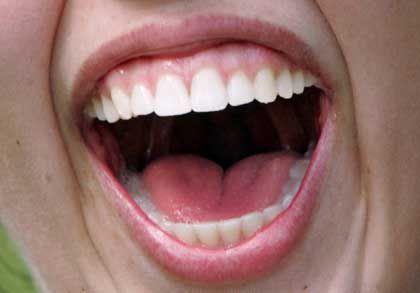 Infektionsquelle Gelächter: Selbst wenn man den kichernden Mund nicht sieht, grinst man mit