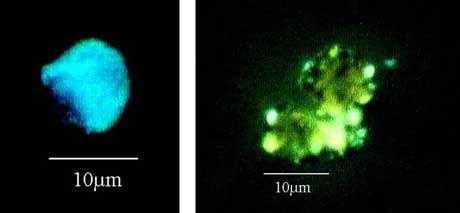 Bakterien, im Juli 2001 entdeckt am Rand der Erdatmosphäre: Beweis für außerirdisches Leben?