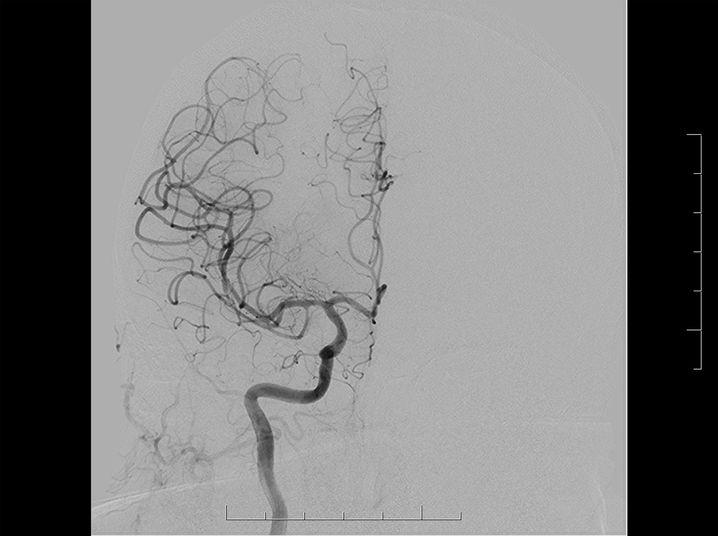 Gefäßdarstellung desselben Patienten nach der Öffnung der mittleren Hirnarterie: Die Durchblutung des Gehirns funktioniert wieder.