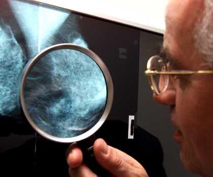Mammographie-Screening (Archivbild): Neue Diskussion um Nutzen und Risiken der Hormontherapie