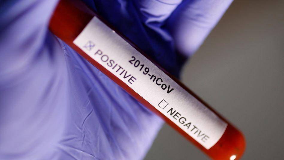 Teströhrchen mit 2019-nCov-Beschriftung: US-Schnelltests sind offenbar teilweise fehlerhaft