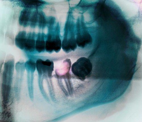 Karies/ Röntgenbild