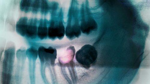 Röntgenbild mit einem zersetzten Zahn