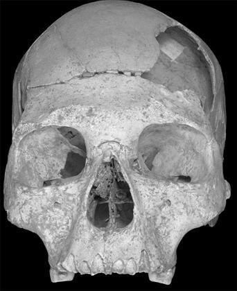 The skull, found in a cave in Romania, provides evidence that humans may have interbred with Neanderthals.