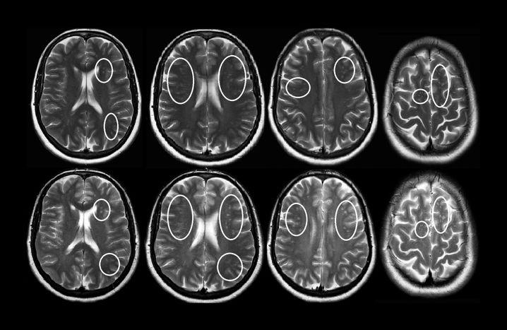 Kernspinaufnahmen vom Kopf der Patientin: Die obere Reihe zeigt Bilder kurz vor der Aufnahme, in der unteren sind Kontrollaufnahmen von drei Monaten später zu sehen.