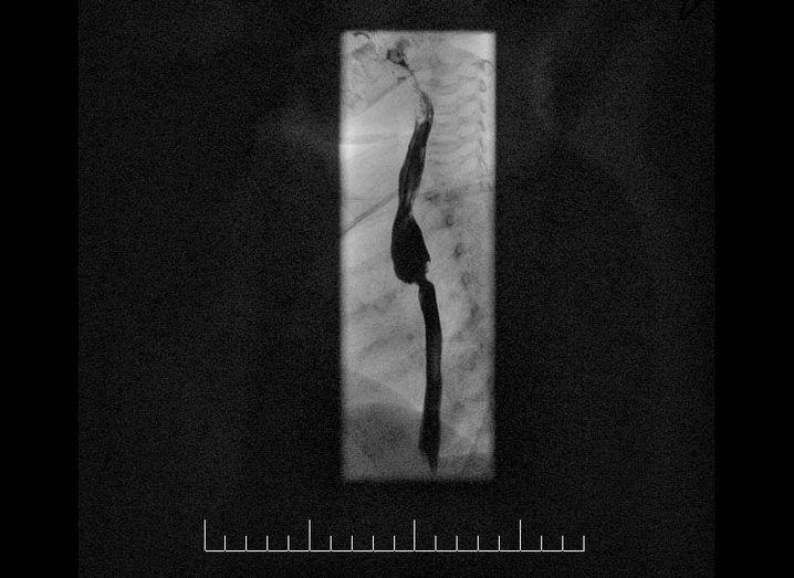 Das Kontrastmittel (schwarz) füllt die Speiseröhre und stellt damit eine Verengung in der Mitte dar und die darüber liegende Aussackung