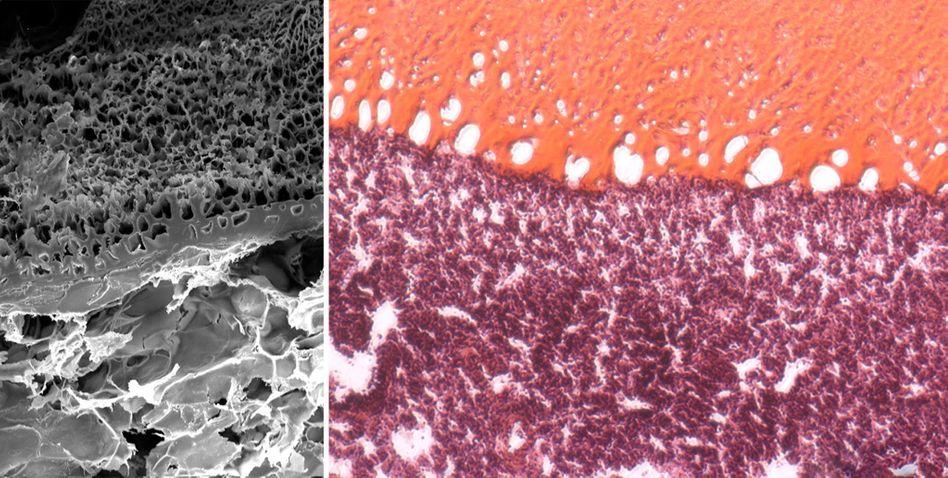 Verbindung zwischen Metro (oben) und Lungengewebe (unten) - links eine Aufnahme mit einem Elektronenmikroskop, rechts eine Aufnahme gefärbter Proben