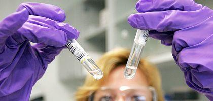 Blutserum-Proben: Virologen in Marburg abreiten mit Hochdruck an einem Impfstoff gegen das neue Schweinegrippe-Virus H1N1