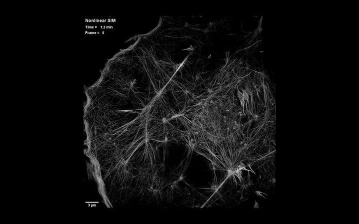 Cytoskelett einer COS-7-Zelle unterm SIM-Mikroskop: Fadenförmige Strukturen dienen der Stabilisierung