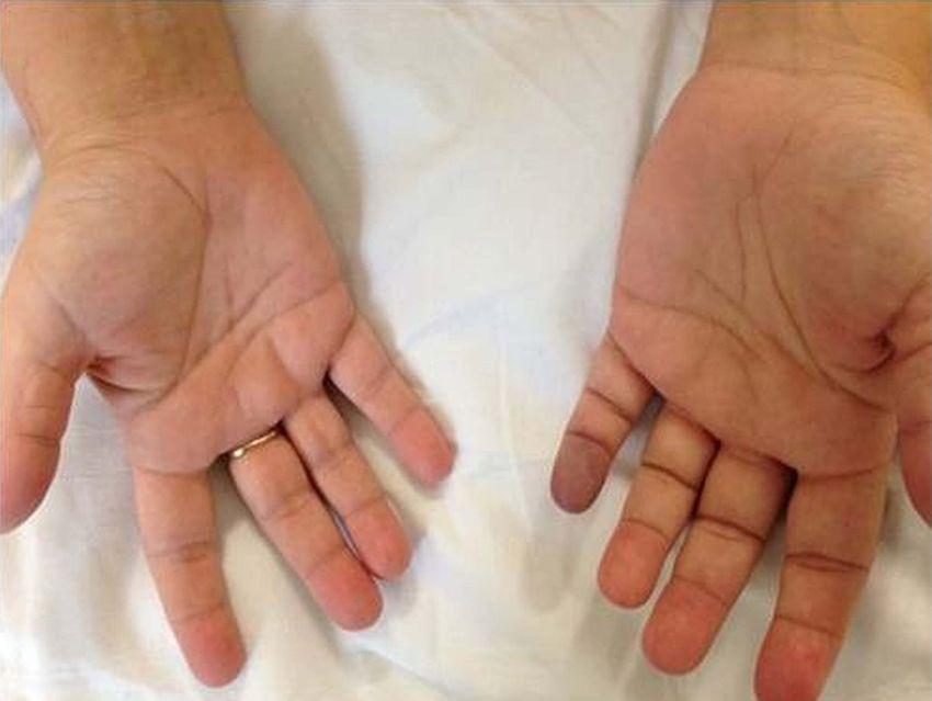 ader geplatzt finger