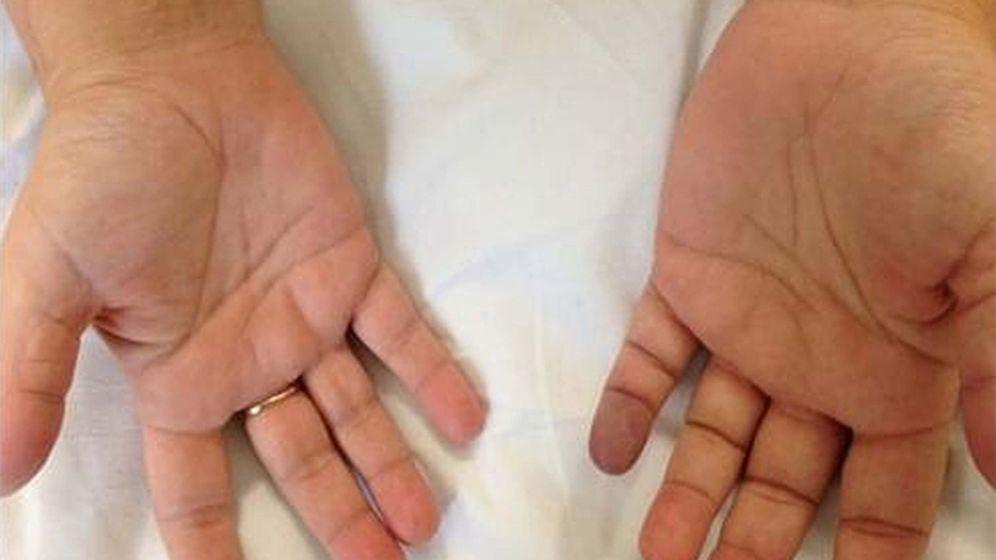 Ringfinger juckt bedeutung linker Ring