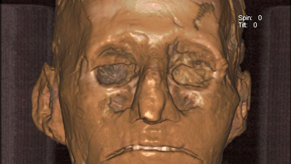 Mysteriöser Mordkomplott: Moderne Medizin klärt Historikerrätsel