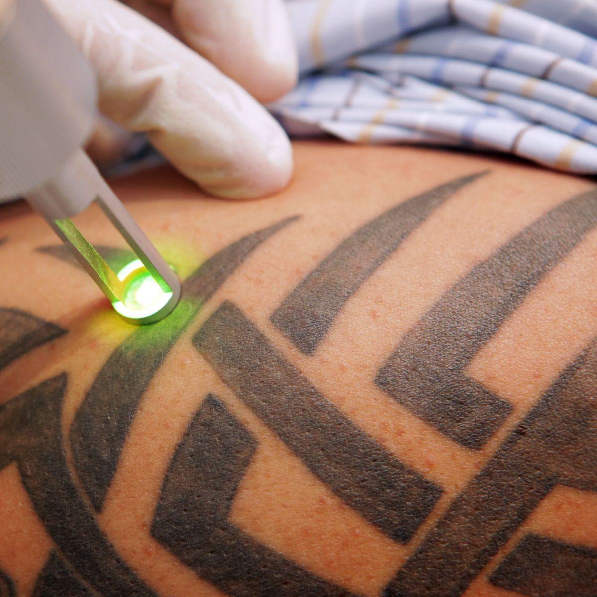 Auf weißes haut tattoo dunkler Pigmentstörungen: Helle