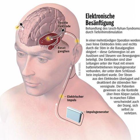 Elektronische Besänftigung: Behandlung des Lesch-Nyhan-Syndroms durch Tiefenhirnstimulation