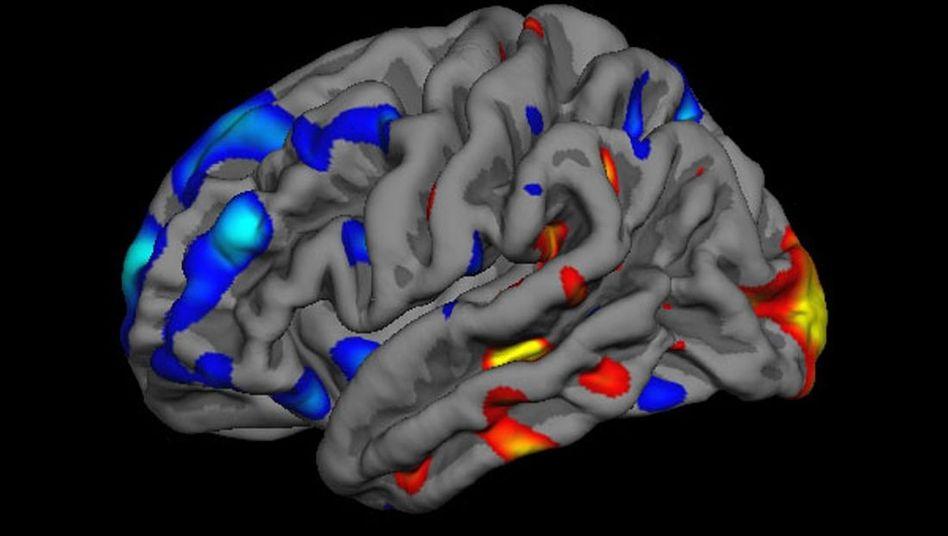 Hirnscan: Rot und gelb leuchten Regionen, die im autistischen Hirn vergrößert sind. Blaue Gebiete sind dagegen verkleinert