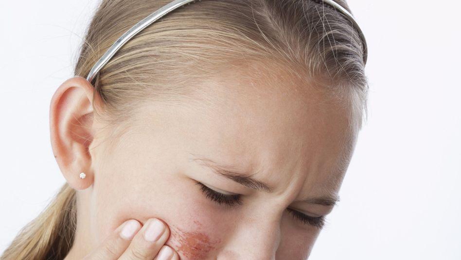 Aufgekratzte Haut: Skin Picking ist ab Mai offiziell eine psychische Erkrankung