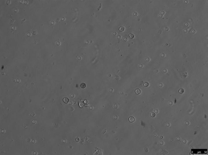 sperma unterm mikroskop