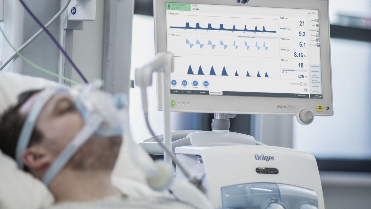 Coronavirus: Weil Beatmungsgeräte fehlen, suchen Firmen nach neuen Lösungen - DER SPIEGEL - Wirtschaft