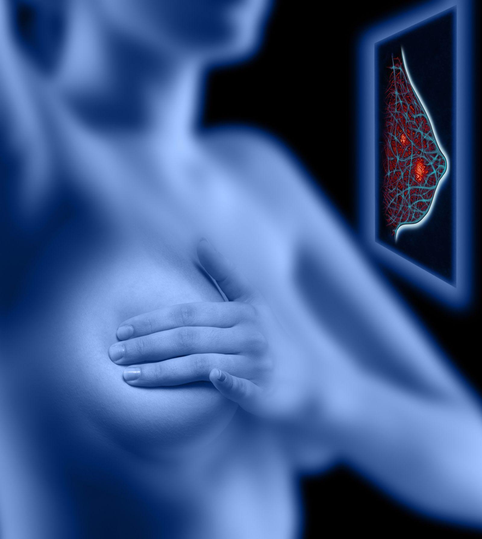 NICHT MEHR VERWENDEN! - Mammografie / Brustkrebs