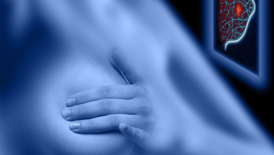 Abtasten: Jährlich erkranken etwa 70.000 Menschen in Deutschland an Brustkrebs