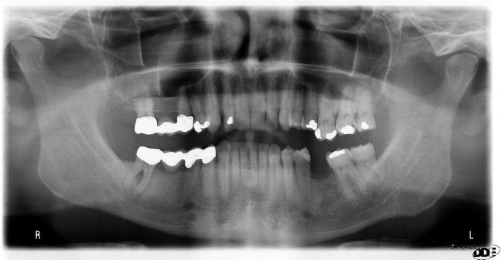 Röntgenaufnahme nach 18 Monaten Leidensweg