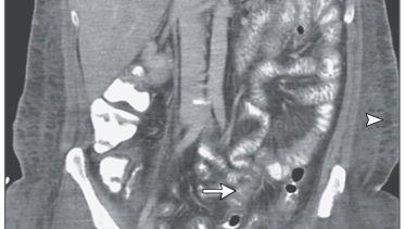 CT-Aufnahme: Verdickte Darmwände und Flüssigkeit in der Bauchhöhle eines 32-Jährigen - Folgen einer seltenen Erkrankung