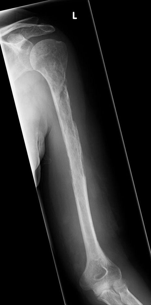 Der linke Oberarmknochen zwölf Monate nach dem ersten Arztbesuch
