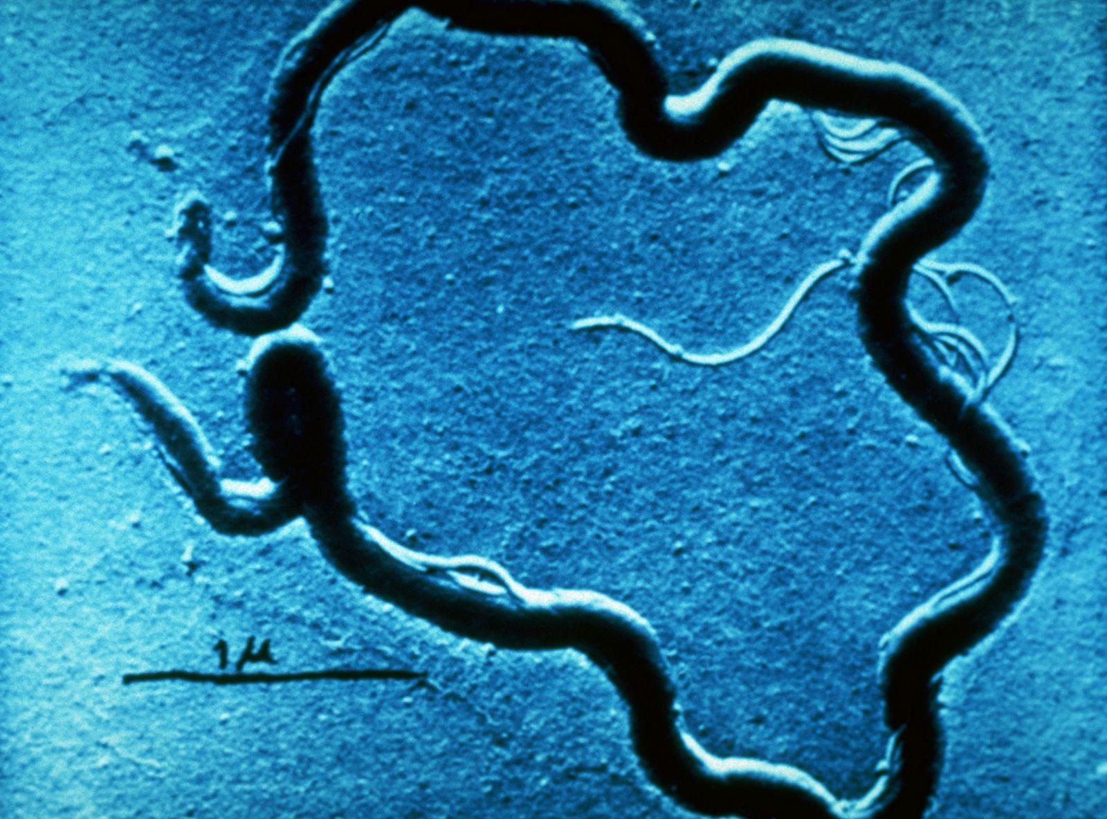 NICHT MEHR VERWENDEN! - Treponema Pallidum / Syphilis