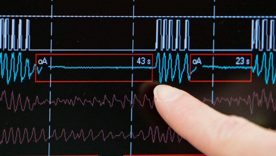 Schlaf-Messwerte eines Patienten mit Atemaussetzern: Das schlafmedizinische Zentrum in Nürnberg ist eines der größten in Deutschland