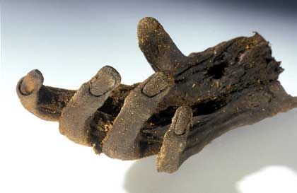 The hand of the corpse discovered in the Uchter Moor in northern Germany.