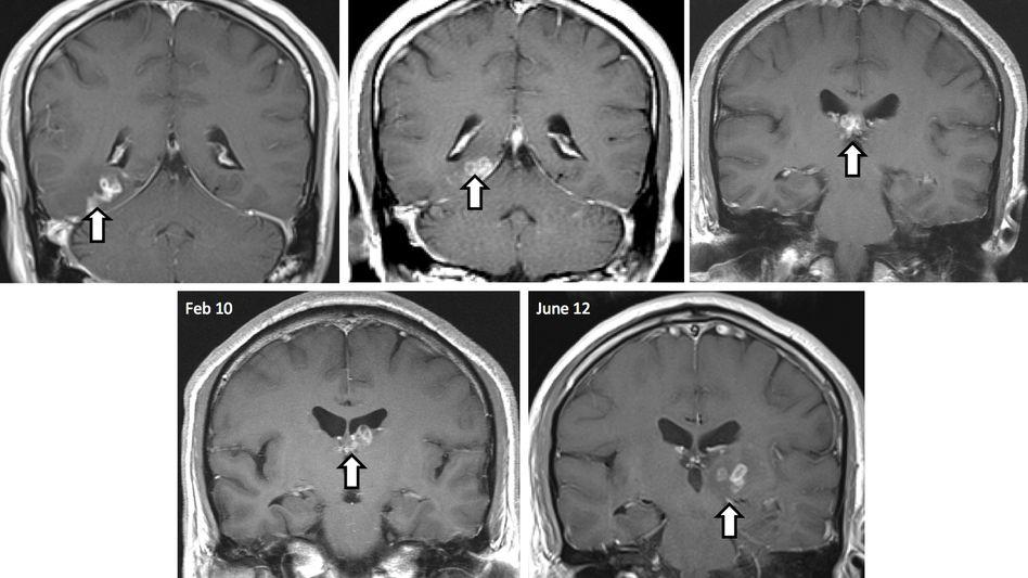 Parasitenwanderung: Im Laufe von vier Jahren arbeitete sich die Larve fünf Zentimeter durch das Gehirn des Patienten