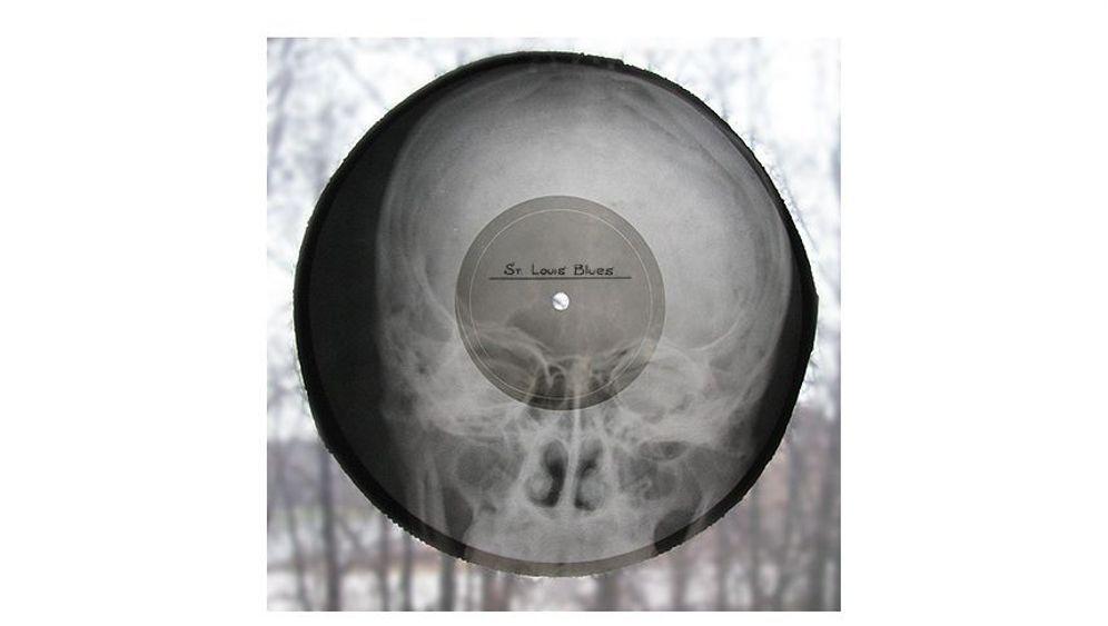Röntgenschallplatten: Knochen, die rocken