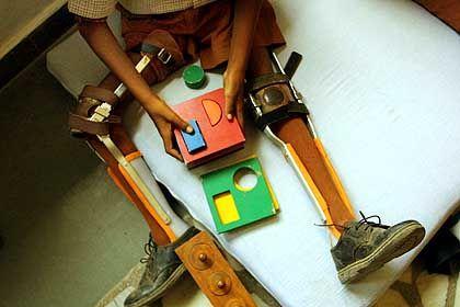 Kinderlähmung in Indien: Ohne Impfung drohen schwere Behinderungen