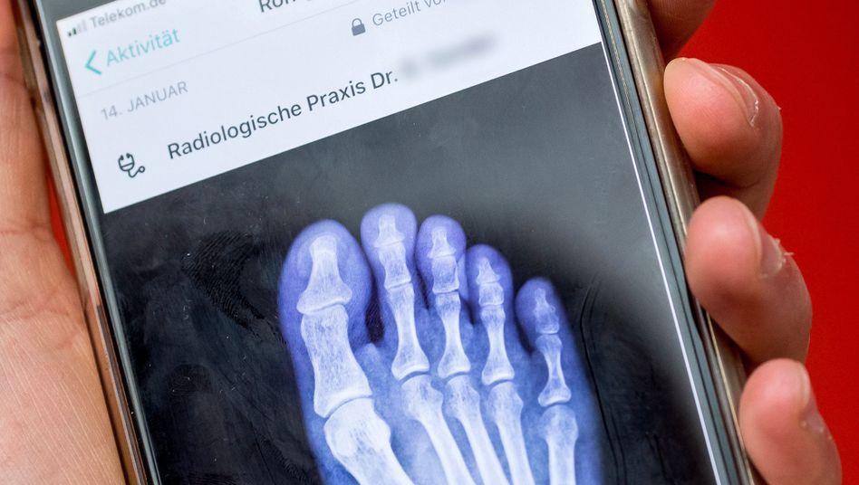 Vivy-Screenshot mit Röntgenbild