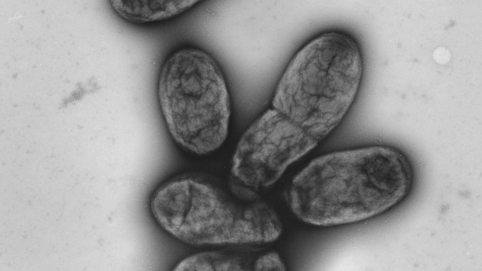Erreger Yersinia pestis: Winzige Erbgutveränderungen machten das Bakterium zum Todesbringer