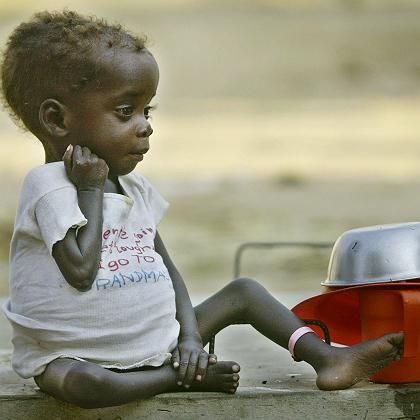 A malnourished child in Angola. The West has failed to deliver on pledges to increase aid to Africa.