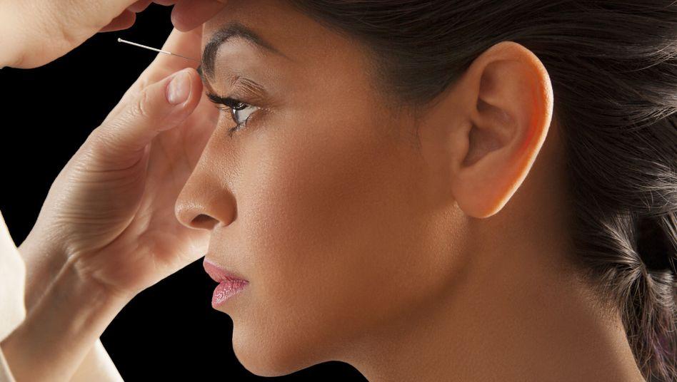 Akupunktur: Ausgefeiltes Placebo oder effektive Heilmethode?