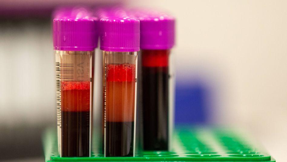 """""""Unter dem Blutspendeverbot leiden vor allem die, die nun dringend auf Spenderblut angewiesen sind"""", sagt die FDP"""