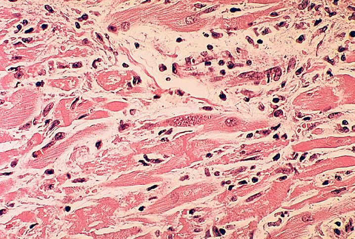 Toxoplasmose-Test: Nur bei konkretem Verdacht sinnvoll