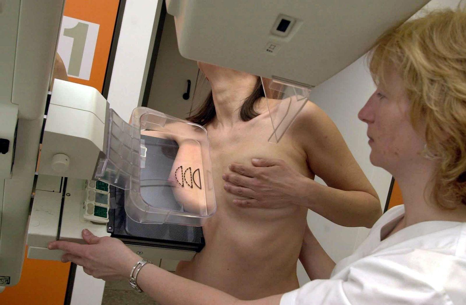 Mammographie / Brustkrebs
