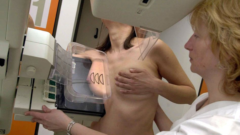 Mammografie: Manche Menschen benötigen keine Krebsuntersuchungen